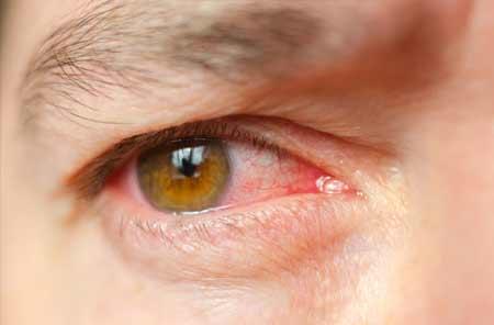 Douleur-dans-les-yeux-KARAKALOOP