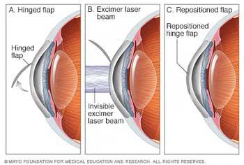 La-vue-et-de-la-chirurgie-optique-aux-États-Unis-karakaloop
