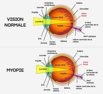 myopie-et-vision-normale-karakjaloop
