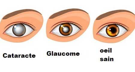problèmes-oculaires